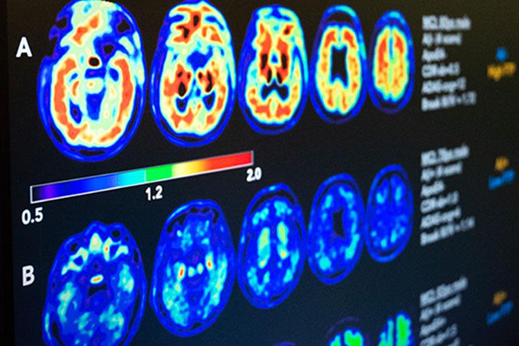 USPOINTER_BrainScan_Tran1_BN